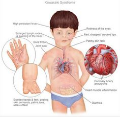 disease | Kawasaki Disease: Summary of the American ...