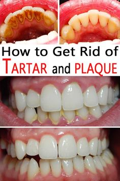 how to get rid of the plaque on your teeth