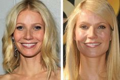 Gwyneth Paltrow Botox Before and After Photos #Botox #GwynethPaltrow #HarpersBazaar