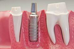 Découvrez le #remboursement des #implants #dentaires et trouvez les mutuelles qui proposent des plafonds élevés