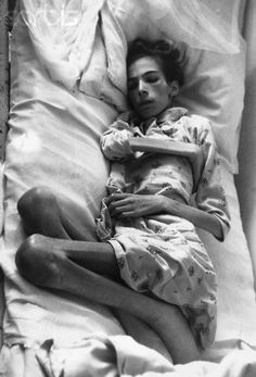 Concentration Camp Victim 1945.