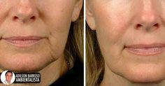 Esta máscara caseira ajuda a reduzir a flacidez do rosto