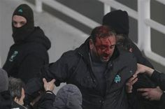 Panthanaikos fan that is a victim of soccer violence in Greece