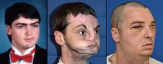 Richard Lee Norris, a 37-year-old man from Virginia who lost a large portion of his face in a 1997 gun accident, received the most comprehensive face transplant to date, including both jaws, teeth and tongue.