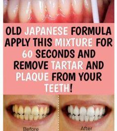 Caring for your oral health is just as important as maintaining your overall health. Not
