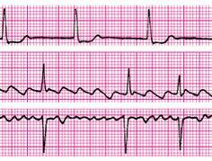 Podwyższone ciśnienie tętnicze u kobiet w ciąży - Artykuły - Artykuły przeglądowe - Medycyna Praktyczna