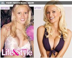 Holly Madison plastic surgery