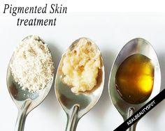 Home remedies for hyperpigmentation – natural skin lightening Dry Skin Remedies, Home Remedies, Natural Remedies, Toenail Fungus Remedies, Skin Lightening Cream, Homemade Oatmeal, Bleaching Cream, Lighten Skin, Tips Belleza