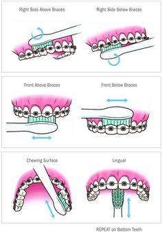 Video shows 3 best ways to remove teeth plaque or tartar at home without visiting a dentist for your dental cleaning. Remedies For Strong and White Teeth: ht. Braces Food, Braces Tips, Dental Braces, Teeth Braces, Dental Care, Kids Braces, Braces Smile, Gold Braces, Teeth Dentist