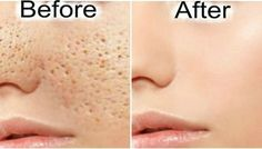 Make All Open Pores To Disappear From Your Skin in 3 Days