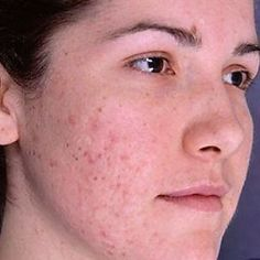 Acne scars- going to try some of these, there are many different remedies listed here