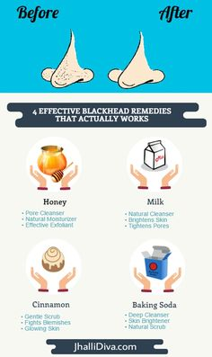 Get rid of blackheads and whiteheads smartly..Top 5 effective and working blackhead removal remedies..tried and tested ways to get rid of pesky blackheads..