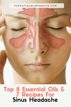 Is Your Head All Achy-Breaky Along With The Rest Of Your Face? Try Essential Oils For Sinus Headache! - The top essential oils for sinus headaches. How to stop sinus headaches with essential oils. Sinus Headache Relief, Oil For Headache, Sinus Headaches, Sinus Headache Remedies, Pain Relief, Essential Oils Allergies, Essential Oils For Headaches, Essential Oils For Sleep, Essential Oil Sinus Headache