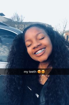 Teens with cute girl facial young braces