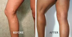 Varicose Veins. Before and After Treatment. #EVLT Advanced Vein Therapy @Advanced Vein Therapy Boise, ID