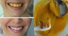Le curcuma une épice jaune magnifique qui est souvent utilisé dans de nombreuses façons pour vous aider à améliorer votre santé et votre beauté. Comme il est efficace pour blanchir la peau, il peut également fournir des résultats incroyables dans le blanchiment des dents...recette...