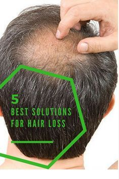 Biofolic Shampoo is a special blend of seaweed, algae and 11 medicinal herbs and grains will give your hair and scalp all the nutrients necessary for a healthy hair growth. It can greatly help against itchiness by removing dandruff and sebum.This product has been approved for medical use in prevention of hair loss and stimulation of hair growth. #hairloss #hairgrowth #biofolicshampoo #haircare