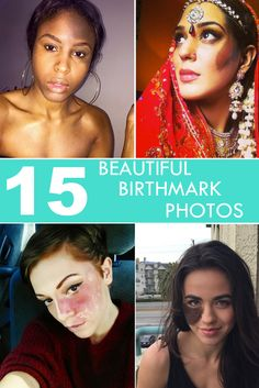 15 Photos That Prove That Birthmarks are Beautiful