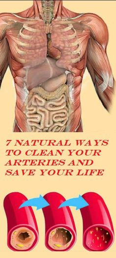 Arteries Remedies 7 Natural Ways To Clean Your Arteries And Save Your Life - Cardiovascular diseases are the leading cause of death in the USA. However, these diseases are preventable and do not always[. Holistic Remedies, Natural Health Remedies, Clean Arteries, High Fever, Improve Circulation, Love Natural, Cardiovascular Disease, Useful Life Hacks, Detox Drinks