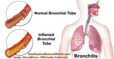 Bronchitis: Is It Contagious, Causes, Symptoms, and Transmission