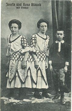 German siamese twins and brother Paranormal, Conjoined Twins, Human Oddities, Celebration Day, Vintage Circus, Special People, Siamese, Sea Creatures, Vintage Images