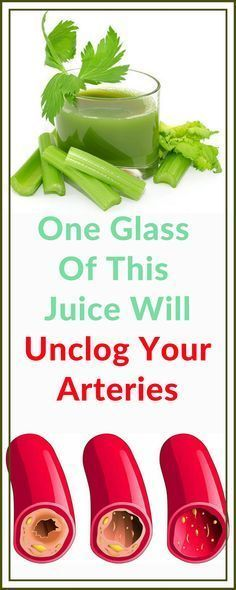 Holistic Health Remedies One Glass Of This Juice Will Unclog Your Arteries - Time To Live Amazing Lower Your Cholesterol, Cholesterol Lowering Foods, Cholesterol Levels, Cholesterol Symptoms, Natural Health Remedies, Natural Cures, Holistic Remedies, Health Benefits, Health Tips