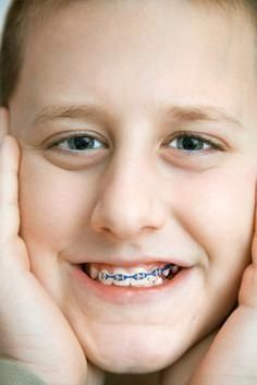 How to Choose Colored Braces