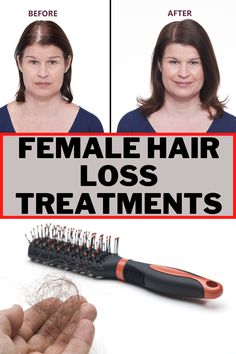 Hair falling out may or may not be symptomatic of a serious illness. Certain events in our lives can trigger hair loss but the body can recover and after a few months normal hair growth is resumed.#hair_loss_women #hair_loss_women_treatment #hair_loss #hair_falling_out #hair_falling_out_after_pregnancy #hair_falling #hair_fall_2020_trends Pregnancy Hair, Hair Falling Out, Hair Loss Women, Fall Hair, Hair Growth, Events, Beauty, Hair Growing, Fall Hairstyles