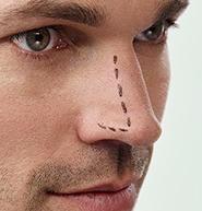 combeauty Wissen: Nasenkorrektur http://www.combeauty.com/combeauty-wissen/plastische-chirurgie/nasenkorrektur
