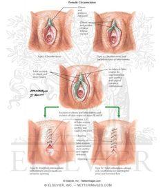 Female vulva operation islam