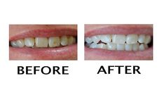 Comment éliminer les taches jaunes sur les dents