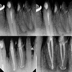 Retratamientos de conductos en el 41 y 42. #Endodoncia #Endodontic #rootcanaltreatment #endo #endodontia #endodontics #endodontist #case #dentistry #odontologia #odonto #work #iloveendo #anatomy #anatomia #morphology #teeth #tooth #root #rootcanal by josefgomezs Our Root Canals Page: http://www.lagunavistadental.com/services/general-dentistry/root-canals/ Other General Dentistry services we offer: http://www.lagunavistadental.com/services/general-dentistry/ Google My Business…