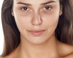 4 técnicas naturais para corrigir olheira