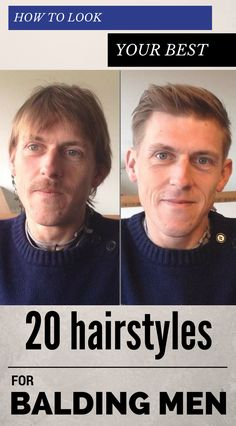 How To Look Your Best - 20 Hairstyles For Balding Men