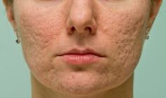 Guide to Scars and Scar Treatment at Mayoral Dermatology in Coral Gables