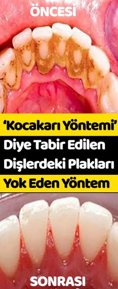 'Kocakarı Yöntemi' Diye Tabir Edilen ve Dişlerdeki Plakları Yok Eden Yöntem Healthy Beauty, Health And Beauty, Healthy Life, Health And Wellness, Health Fitness, Beauty Make Up, Beauty Care, Teeth Care, Skin Care