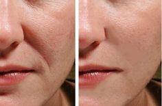 Beauty Care, Diy Beauty, Beauty Hacks, Loose Skin, Body Hacks, Sagging Skin, Prevent Wrinkles, Beauty Recipe, Anti Wrinkle