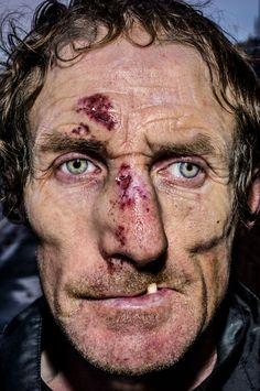 Pain is skin deep: Extreme close-up portraits of people on the edge Close Up Portraits, Beach Portraits, Amazing Photography, Portrait Photography, Extreme Close Up, Street Portrait, Too Faced, Face Reference, Face Men