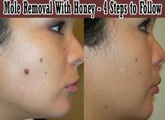 Skin Moles Removal With Honey - Four Detailed Steps to Follow