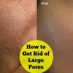 How to Get Rid of Large Pores - Cute Health
