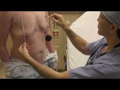 Dr. Daniel Medalie performs FtM top surgery (double incision mastectomy with nipple grafting)