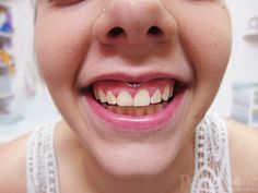 "It is impossible not to smile when you get one of these adorable piercings! They are aptly named ""the smiley"" piercing. I did th..."