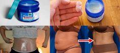 Reduce tallas y elimina Grasa con Vicks Vaporub