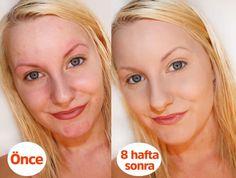 10 Yaş Genç Gösteren Pirinç Maskesi Face Care, Skin Care, Cream, Beauty, Maya, Masks, Creme Caramel, Facials, Facial Care