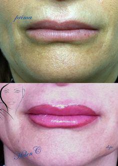 Contorno labbra con riempimento - pigmento biotek