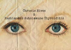 Chronic Hives & Hashimoto's Autoimmune Thyroiditis HypothyroidMom.com #hives #autoimmune #hashimotos