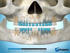 This Panoramic X-ray shows the normal eruption of teeth.