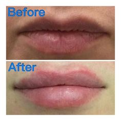 This client asked for natural volume in her lips. ❤️💉 She got a subtle & natural looking lip enhancement; pictures taken immediately before & after.  #antiaging #juvederm #Cosmeticenhancement #infographic #dermalfillers #neurotoxins #Botox #dysport #botoxfiller #brotox #medspa #skincare #goodbyewrinkles # beforeafter #wrinkles #samsara_Sterling