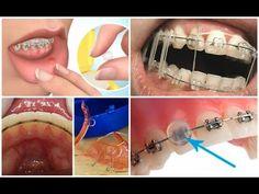 how orthodontic rubber bands work this is an example of a way usos y funciones de las ligas elasticas en los brackets youtube solutioingenieria Images