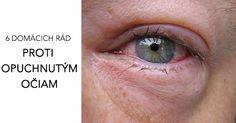 Trápia ťa opuchnuté oči? Opuch očí môže mať veľa príčin. Alergiu na kozmetiku, prostredie alebo nedostatok spánku. V každom prípade, chceš určite zistiť, ako sa zbaviť opuchnutých očí. Akadémia krásy má pre teba 7 domácich receptov, ktoré fungujú.
